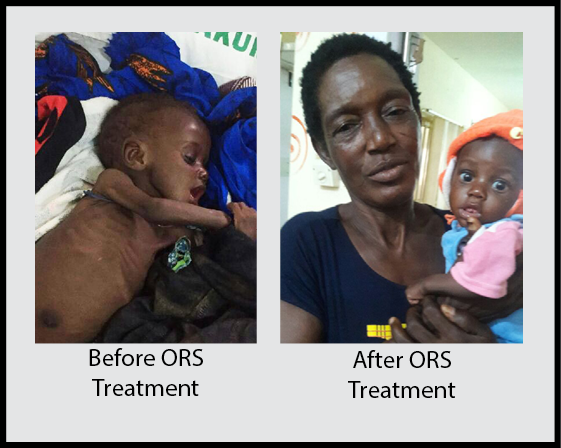 ORS Before-After.png